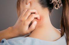 Mückenstich-Allergie: Frau mit Mückenstich am Nacken
