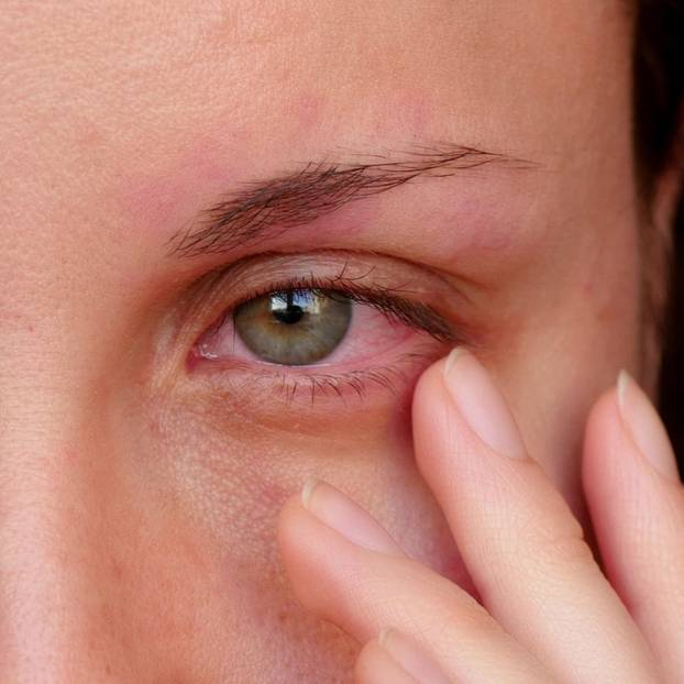 bindehautentzündung symptome