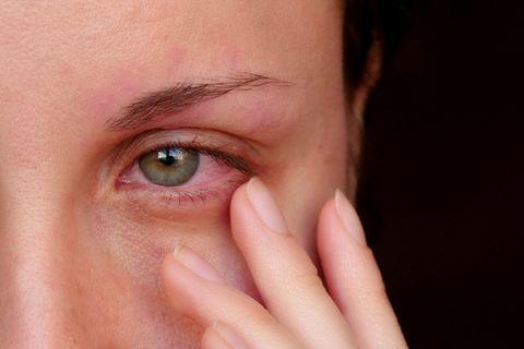 Bindehautentzündung: Hausmittel, die Linderung verschaffen: Frau mit gerötetem Auge