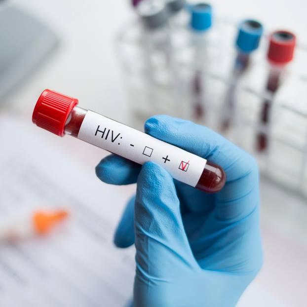 Zweiter HIV-Patient geheilt