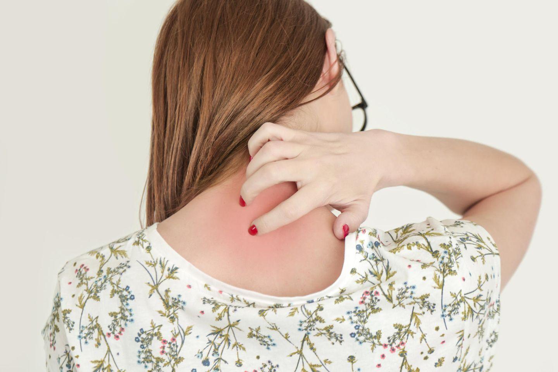 Hautausschlag: Frau mit Ausschlag am Nacken