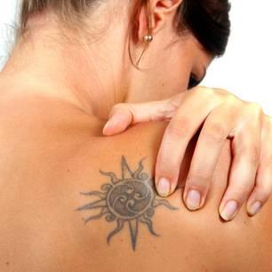Tattoo-Allergie: Frau mit Tattoo