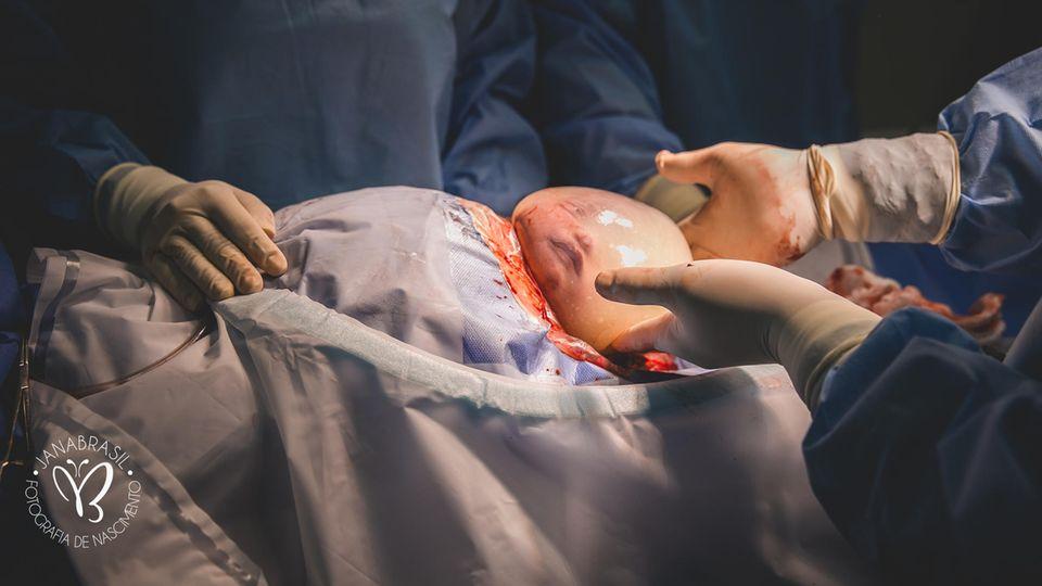 Geburt mit Glückshaube: Baby kommt in seiner Fruchtblase zur Welt
