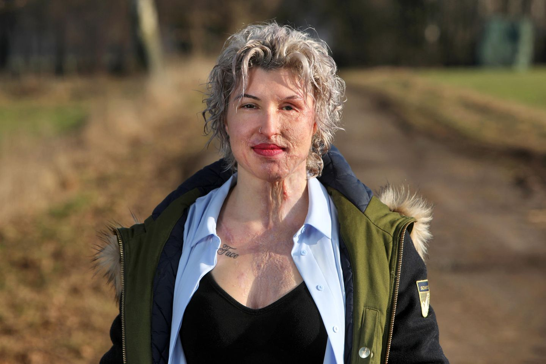 Säure-Opfer Vanessa Münstermann