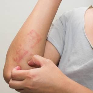Nesselfieber: Frau mit Ausschlag am Ellenbogen
