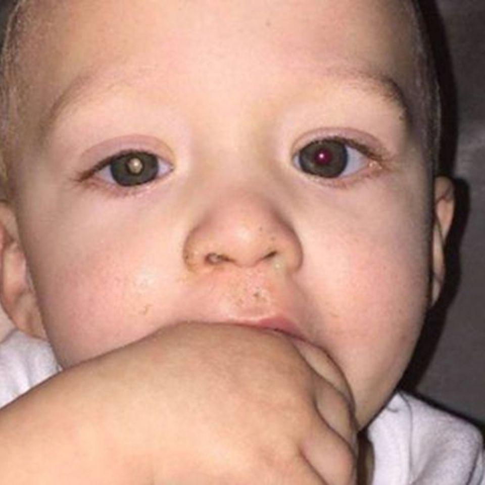 Foto von Kind: Mutter enthüllt tödliche Krankheit