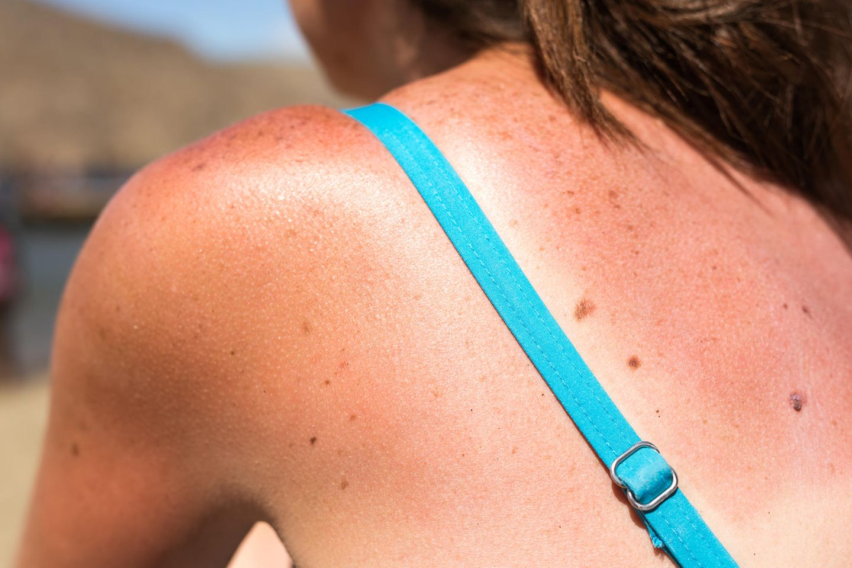 Sonnenbrand-Hausmittel: Frau mit Sonnenbrand