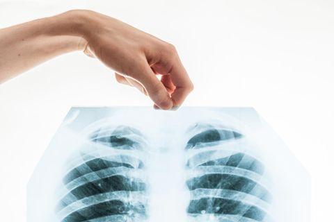Lungenkrebs behandeln: Röntgenbild einer Lunge