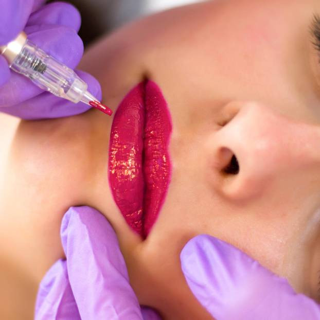 Permanent Make-up Lippen: Frau bekommt Permanent Make-up an den Lippen