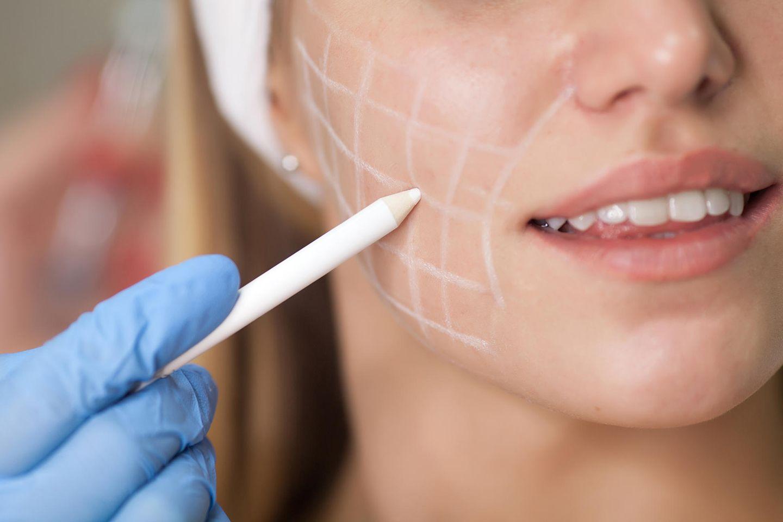 Beauty-OP-Trend: Chirurg zeichnet Linien auf Gesicht einer Frau