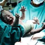 Kaiserschnitt-Mama wider Willen: Über das Gefühl, versagt zu haben