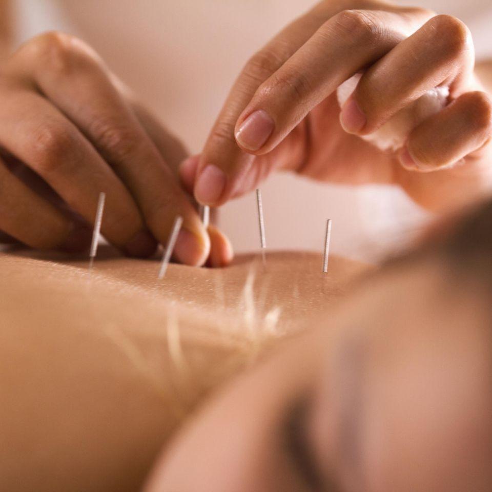 Frozen Shoulder: Akupunktur