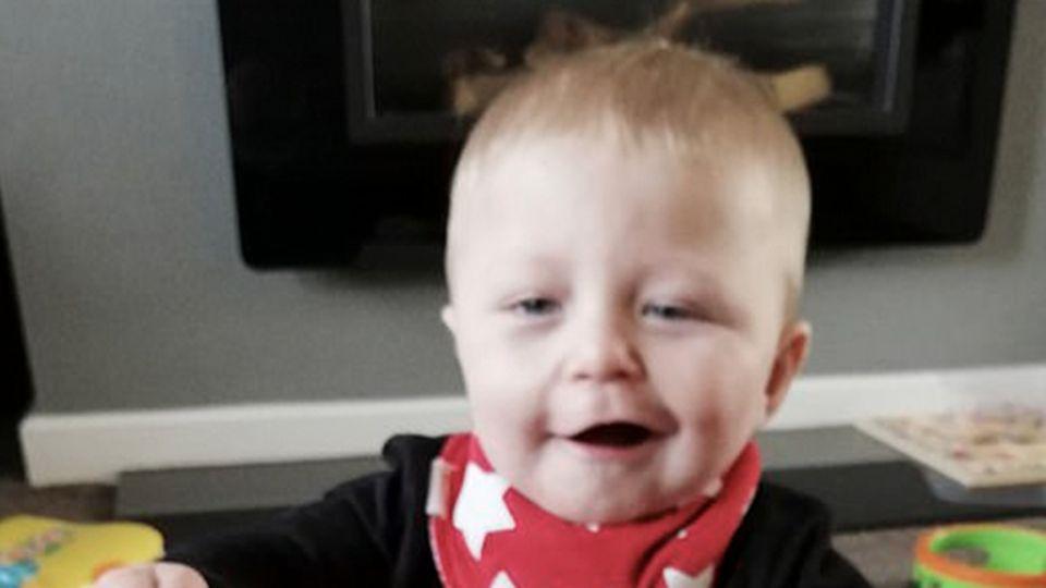 Ungewöhnliche Diagnose: Mutter denkt, ihr Kind hätte Schlaganfall auf Foto, dann wird aber eine seltene Erkrankung entdeckt