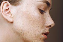 Pigmentflecken Creme: Frau mit Sommersprossen