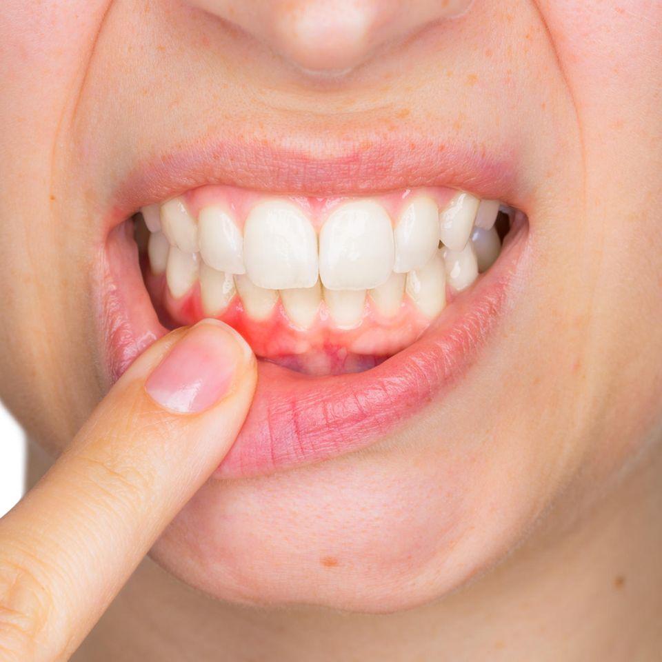 Hausmittel gegen Zahnfleischentzündung: Frau zeigt wundes Zahnfleisch