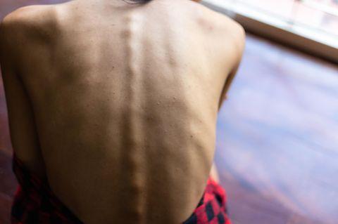 Untergewicht: Wirbelsäule zeichnet sich durch die Haut ab