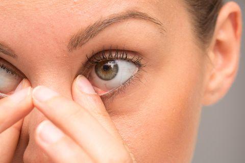 Gerstenkorn Hausmittel: Frau fasst sich ans Auge