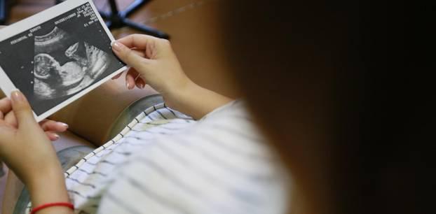 USA: Neue Studie hat untersucht, wie es Frauen nach Abtreibungen geht: Frau hält Ultraschallbild