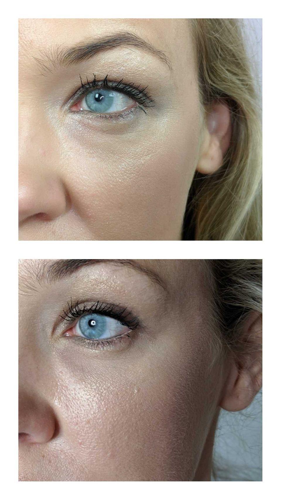 Augenringe unterspritzen: Vorher-Nachher-Bild