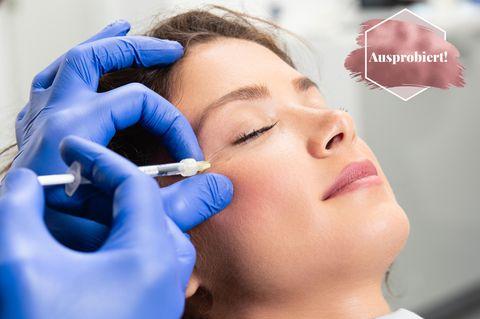 Augenringe unterspritzen: Frau erhält Hyaluronsäure-Injektion am Auge