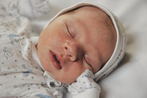 Milchschorf: Schlafendes Baby