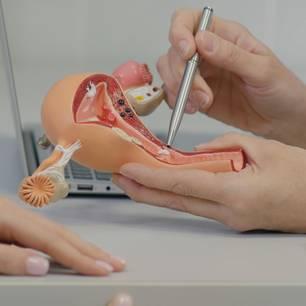 Gynäkologin mit Modell einer Vagina