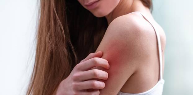 Krätze: Frau kratzt sich am Arm