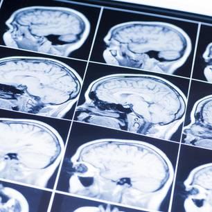 Serotonin erhöhen: Röntgenbilder vom Gehirn