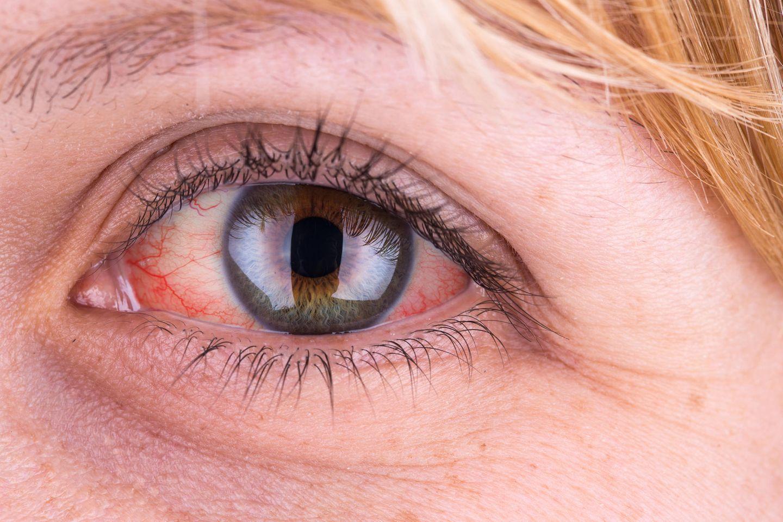 Rote Augen: Frau mit rotem Auge
