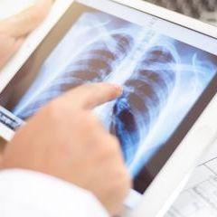 Verhütung: Das Implantat einer Frau wandert von ihrem Arm in ihre Lunge