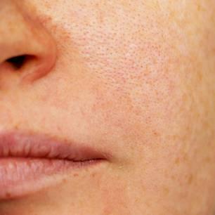 Ausschlag im Gesicht: Gesicht in Nahaufnahme