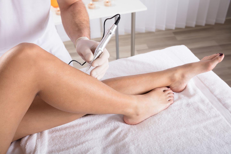 Nadelepilation: Frau mit nackten Beinen sitzt auf einer Behandlungsliege und Therapeut hält eine Nadel an die Haut