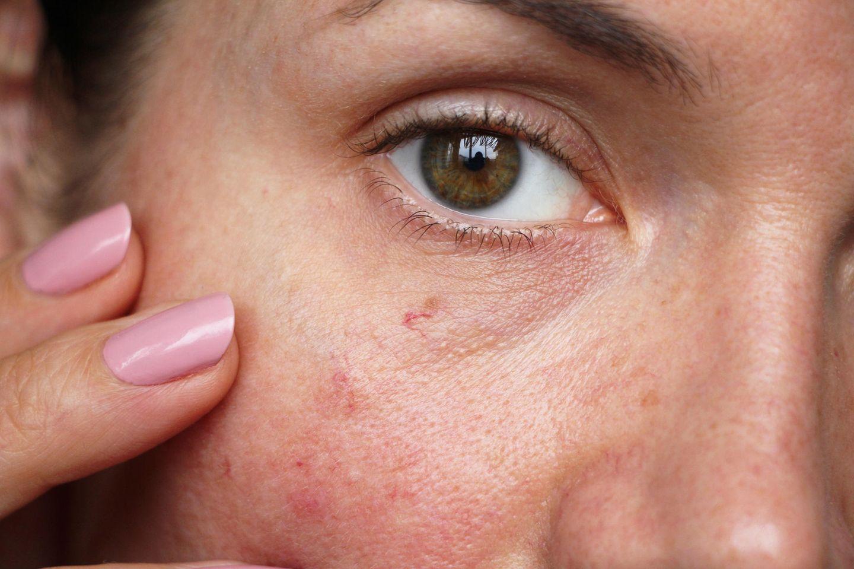 Dicke Backe: Frau fasst sich an ihre gerötete Wange