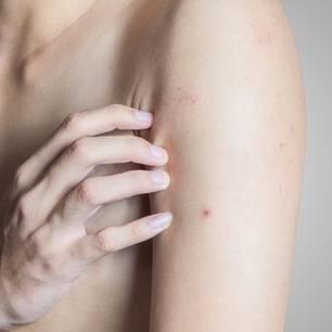 Rote Punkte auf der Haut: Nackter Oberkörper, eine Hand fasst an den mit roten Punkten übersäten Arm