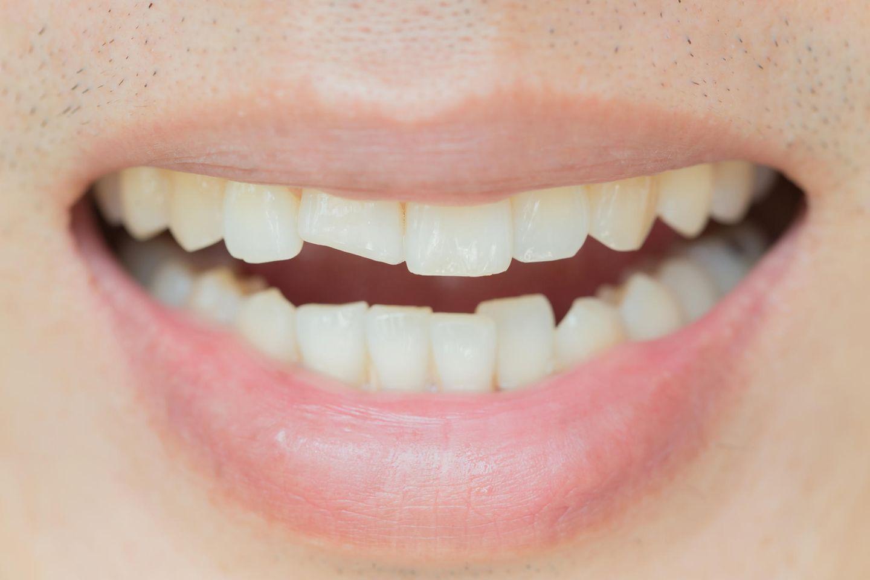 Zahn abgebrochen: Abgebrochener Schneidezahn