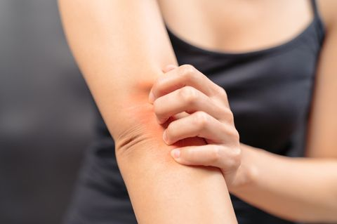 Sommer-Tipp: So kratzt du nie wieder einen Mückenstich auf
