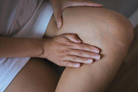 Krampfadern: Behandlungsmethoden im Check: Krampfadern am linken Bein