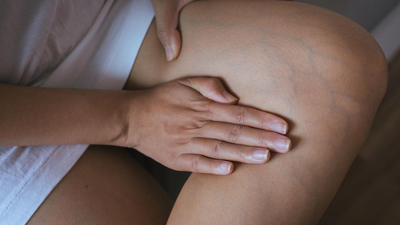 3 Wochen Diät Krampfadern entfernen