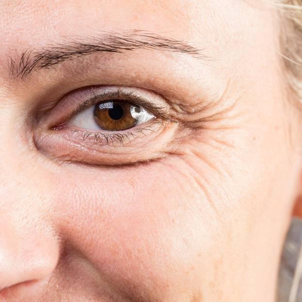 Falten im Gesicht: Frau mit Augenfalten