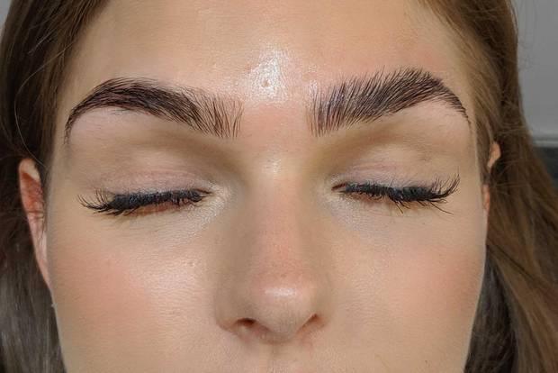"""Hier seht ihr die Augenbrauen im direkten Vergleich. Links ist die Augenbraue im """"Normalzustand, rechts die geliftete Augenbraue."""