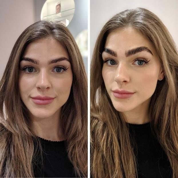 Vorher (l.) vs. nachher. Die Augenbrauen sehen nach dem Treatment deutlich voller und geliftet aus.