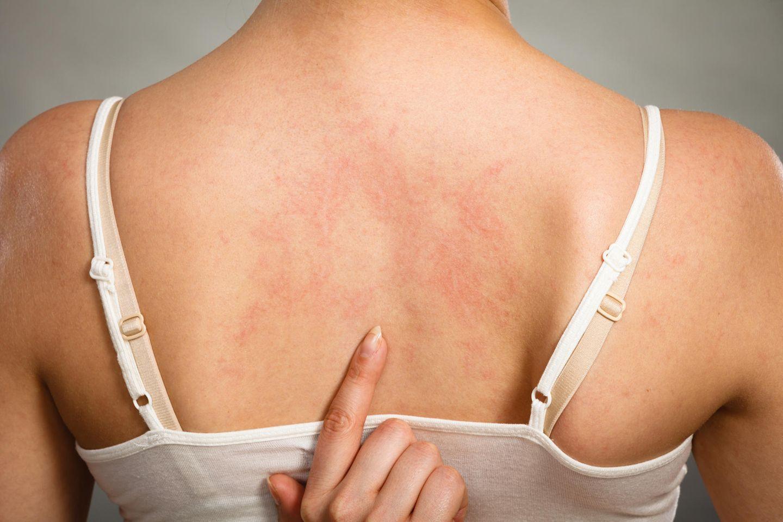 Hausmittel gegen Nesselsucht: Frau mit Hautirritationen am Rücken