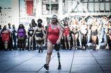 The All Sizes Catwalk: Frau mit Beinpothese