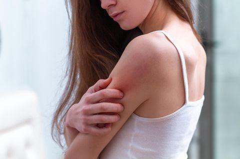 Hausmittel gegen Schuppenflechte: Frau kratzt sich am Arm