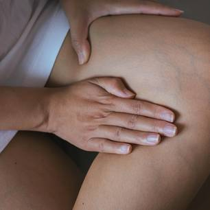 Hausmittel bei Venenentzündung: Frau fasst sich an Krampfadern am Bein