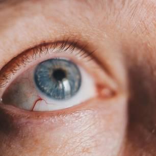Hornhautentzündung: Entzündete Hornhaut