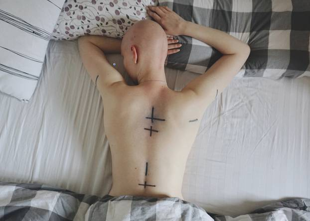 Hirntumor mit 18 - Bestrahlung