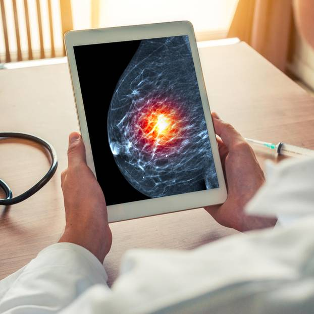 Moderatorin bekommt bei Live-Mammographie Diagnose