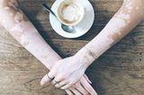 Einzigartig! Diese Fotos feiern die Schönheit von Frauen mit Vitiligo