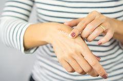 Narben entfernen: Frau cremt sich Narbe ein